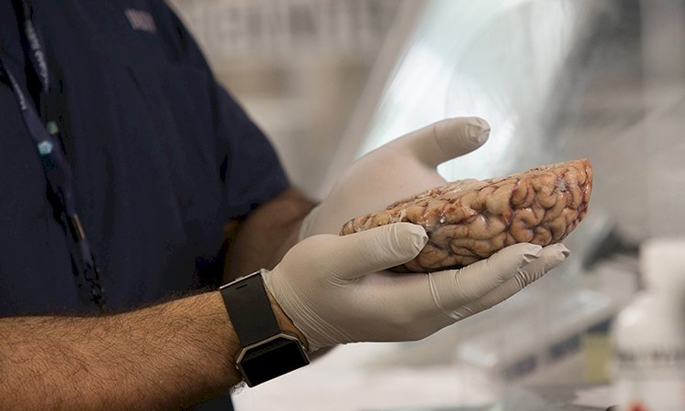 Brain Donation is Possible While We are Alive