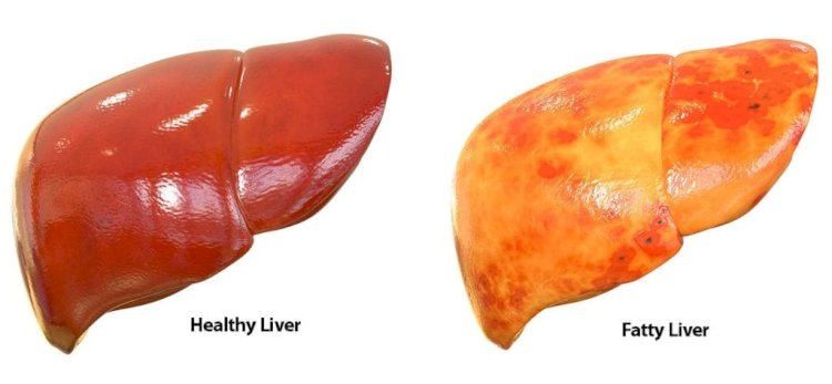 Causes Of Fatty Liver And Diet Chart Of Fatty Liver
