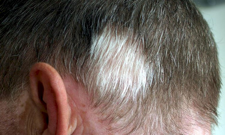 Why Hair Grows Grey is Not A Puzzle Anymore